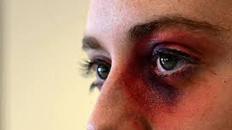 South Dakota Focus: SDF 2419 Domestic Violence