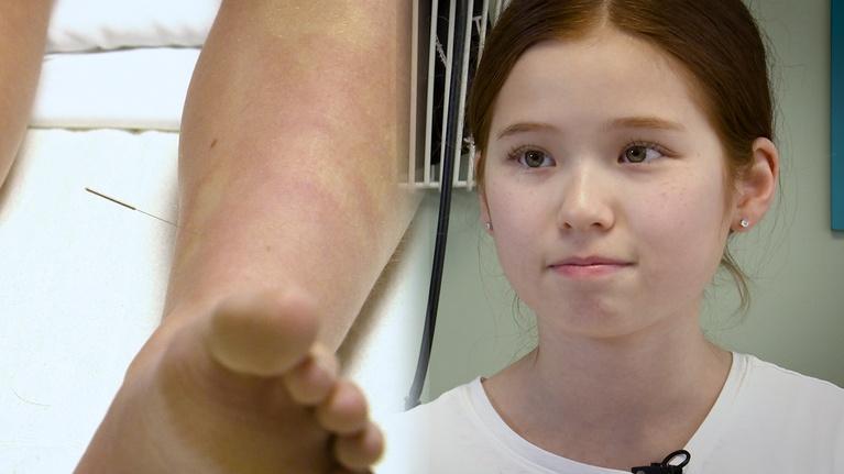 KVIE Digital Studios: Pediatric Acupuncture   Focus on Health