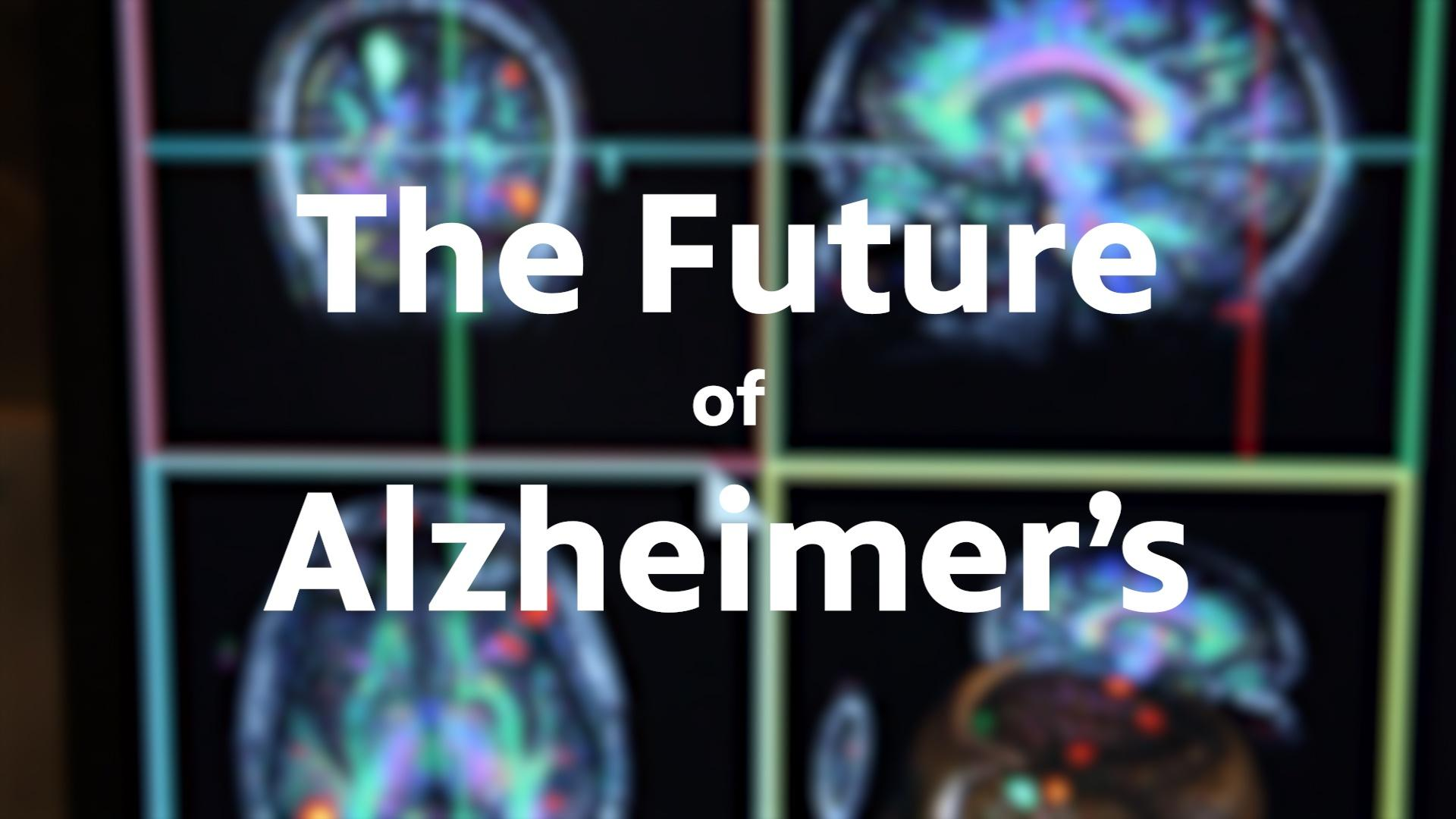 The Battle Against Alzheimer's
