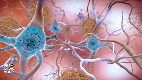 Can ultrasound be used to fight Alzheimer's?