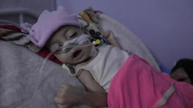 Rising food insecurity is killing war-torn Yemen's children