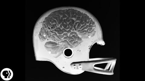 BrainCraft -- S2 Ep33: Are Concussions Deadly?