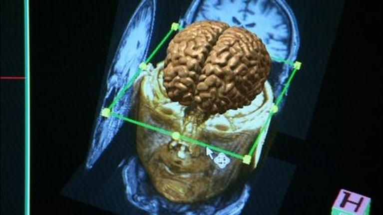 The Human Spark: Scanning the Brain