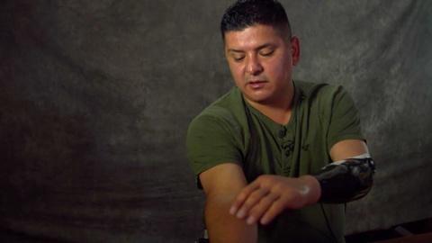 Military Medicine -- Ramon Padilla and Cutting-Edge Prosthetics