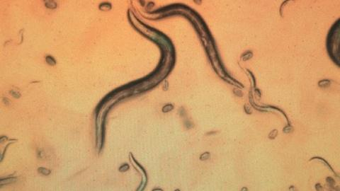 PBS NewsHour -- Inside a worm lab at MIT