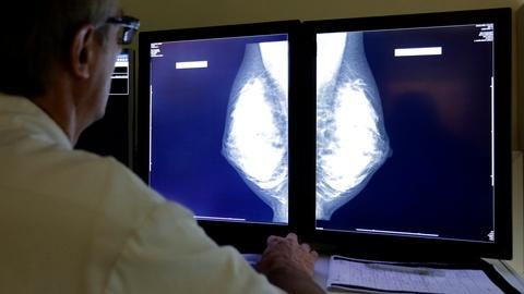 PBS NewsHour -- Study raises questions about early breast cancer treatment