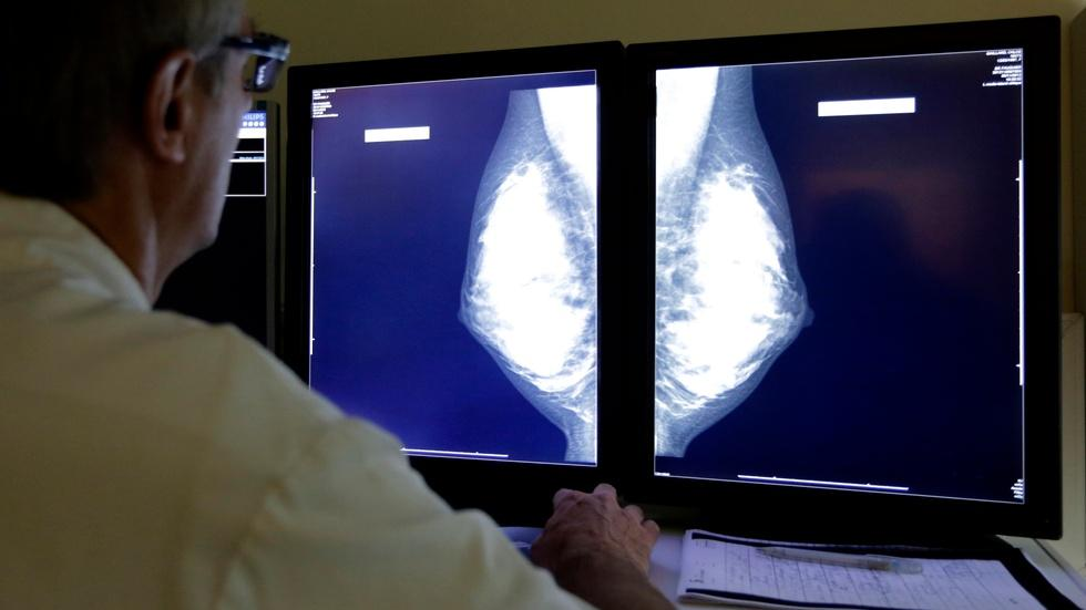 Study raises questions about early breast cancer treatment image