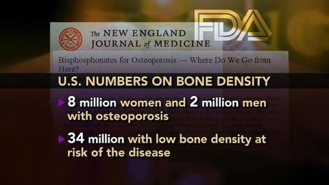 PBS NewsHour -- FDA Urges Caution Over Long-Term Use of Bone-Density Drugs