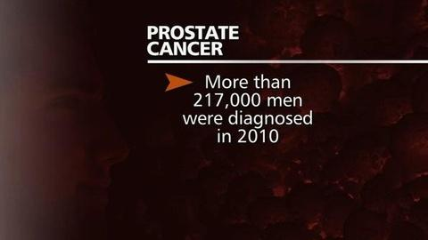 PBS NewsHour -- Panel's Pitch to Nix Routine Prostate Cancer Tests Draws...