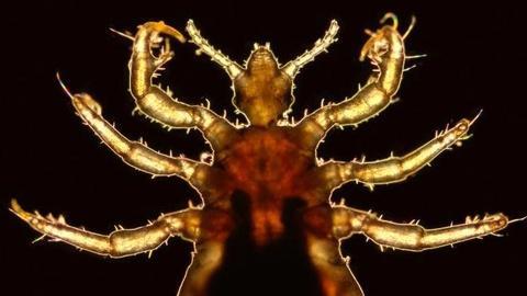 NOVA scienceNOW -- S5 Ep5: Lice and Human Evolution