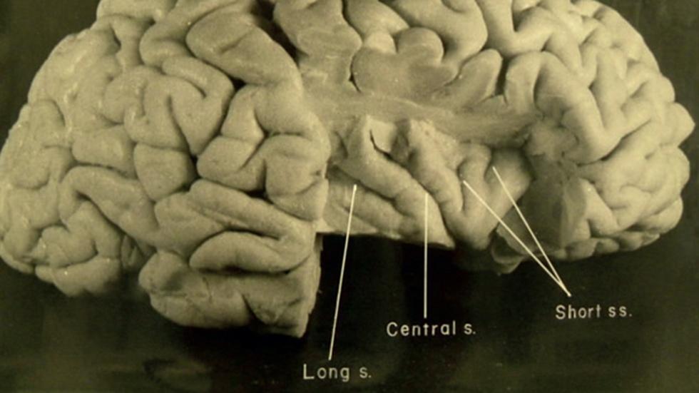 S6: New Photos of Einstein's Brain image