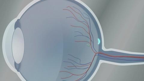 NOVA -- Eye Robot