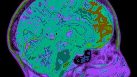 NOVA -- S43 Ep8: Alzheimer's Virus-Like Protein