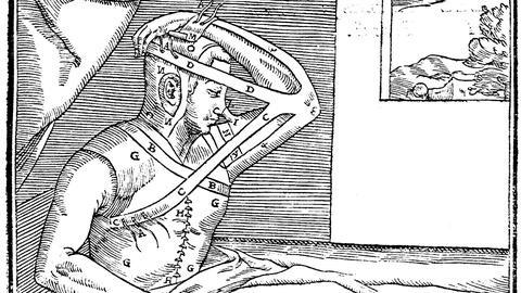 NOVA -- 16th Century Nose Jobs
