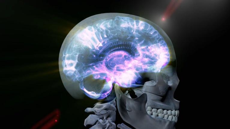 Seized: Inside the Mystery of Epilepsy: What is Epilepsy?