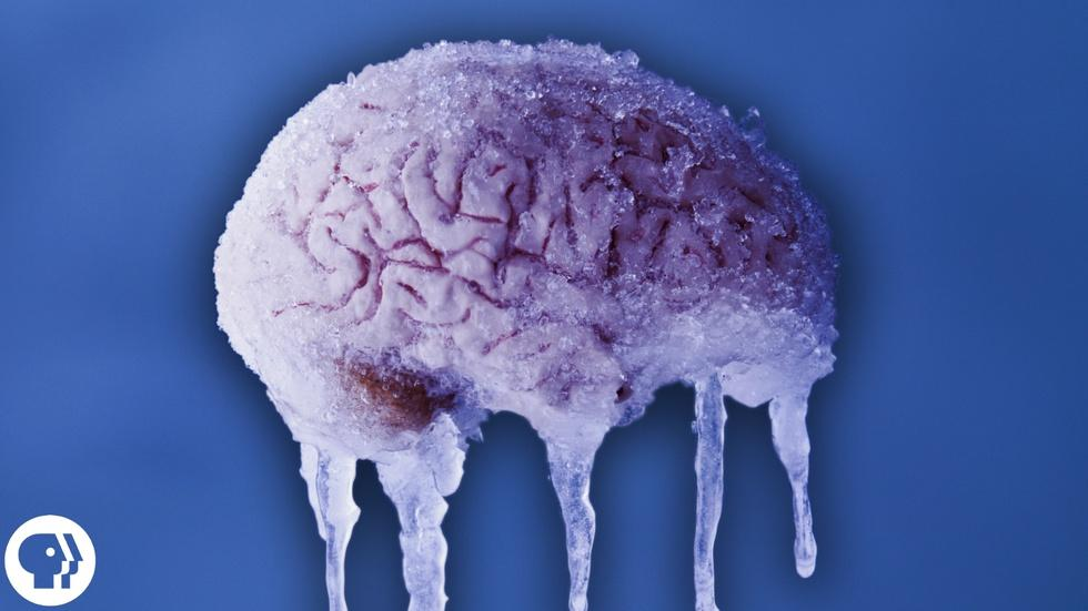 Why do You Get a Brain Freeze? image