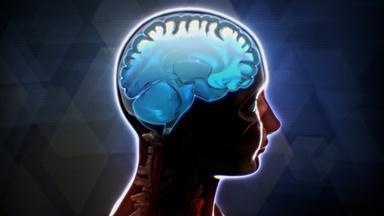 How Cannabis Affects Teens' Brains