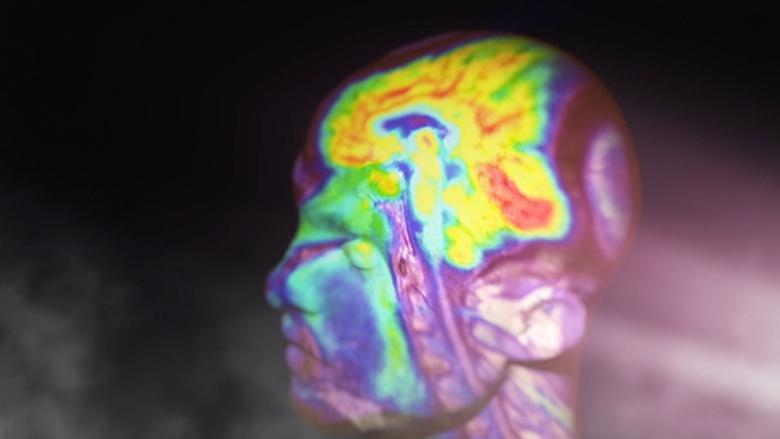 Mysteries of Mental Illness Image