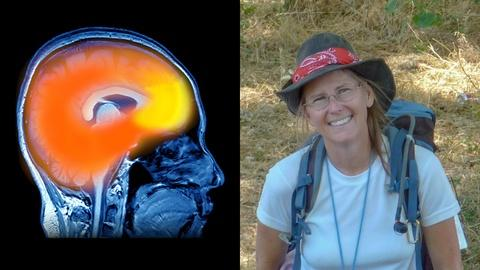 NOVA -- Losing a Loved One to Early Onset Alzheimer's