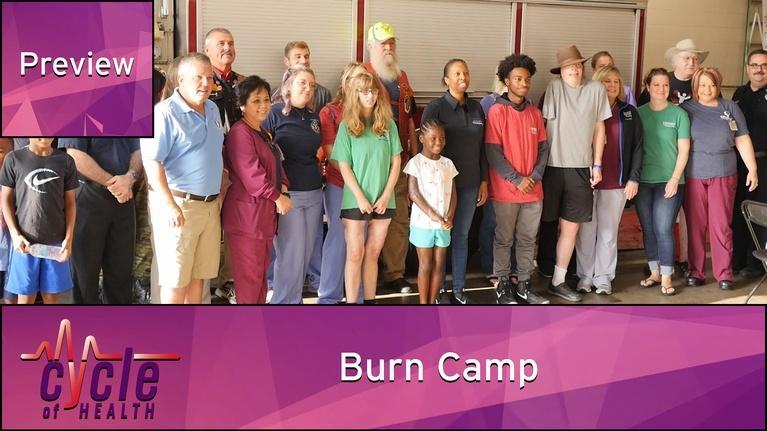 Cycle of Health: Burn Camp