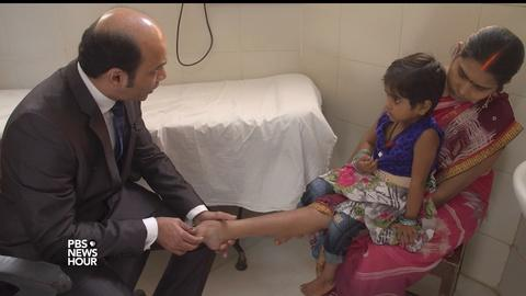 PBS NewsHour -- This simple correction for clubfoot is a life changer